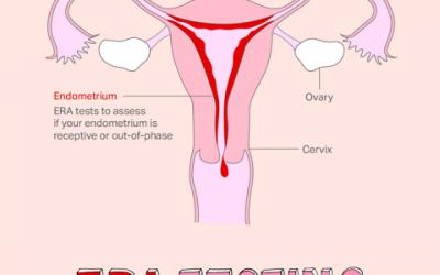 IVF And ERA Testing – Endometrial Receptivity Assay